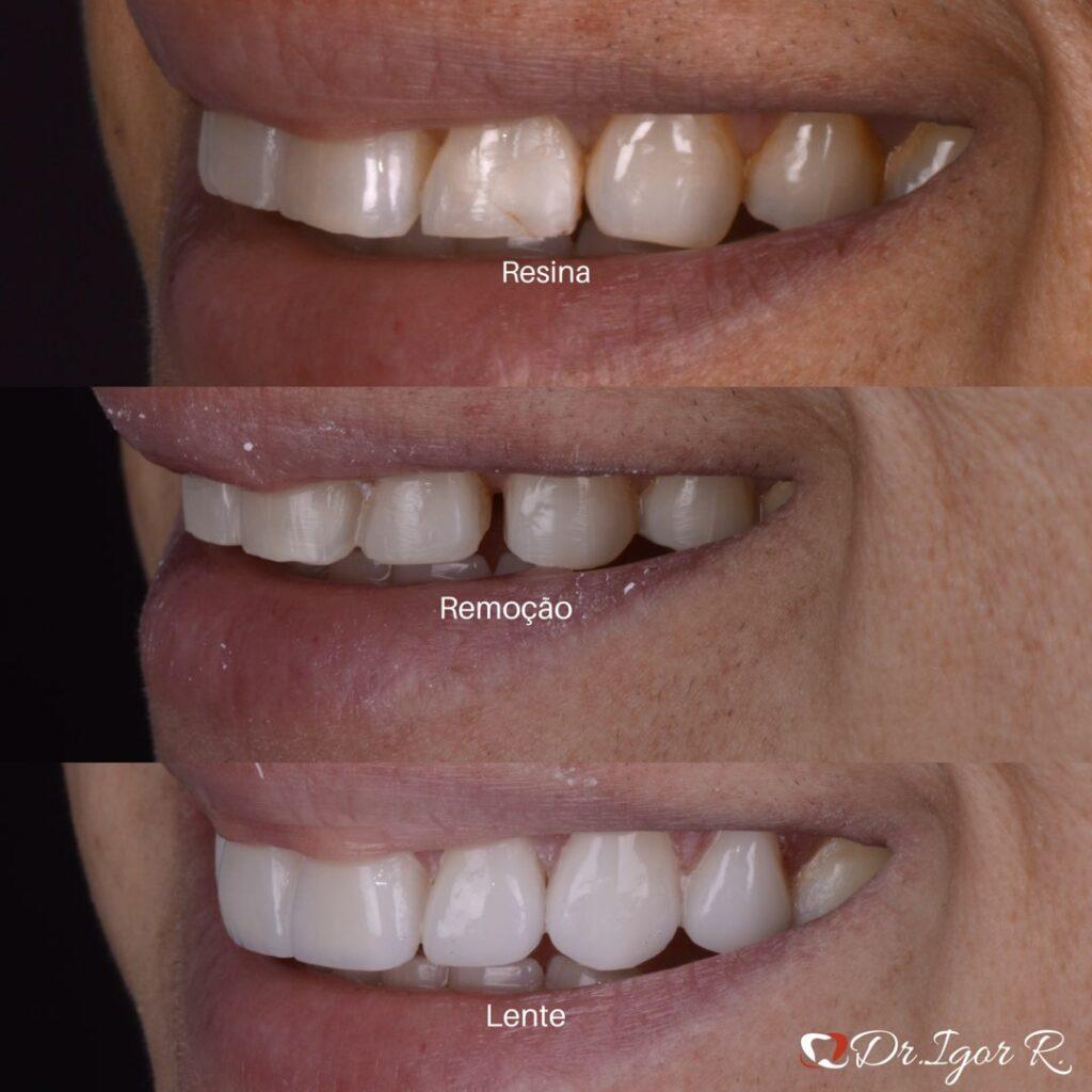 Antes e Depois de resinas removidas e lentes de contato dentais emax dr. igor ribeiro dentista em fortaleza