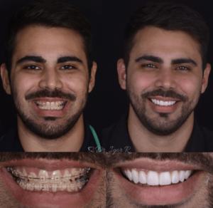As 6 principais dúvidas sobre Lentes de Contato Dental em fortaleza