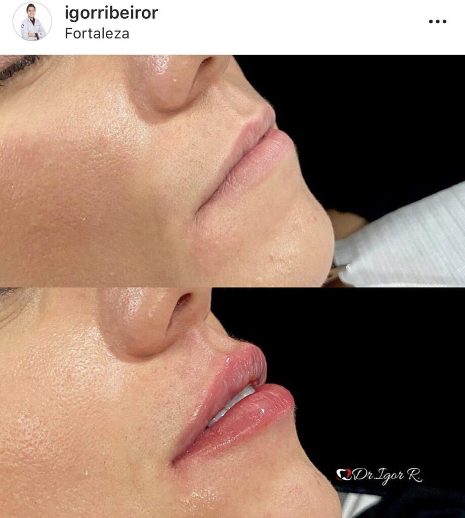 Preenchimento Labial Dr. Igor Ribeiro Rola @igorribeiror | Harmonização Facial em Fortaleza | Contorno Volume Labial Preenchimento de lábios
